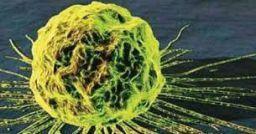 Rischi cancerogeni: le indicazioni del D.Lgs 81/08 e dell'INAIL